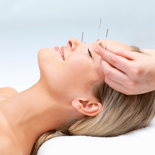 Acupuncture in Scottsdale, AZ