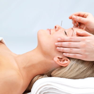Acupuncture in Scottsdale Deal
